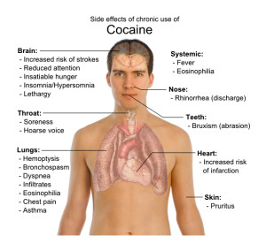 long term effects of cocaine